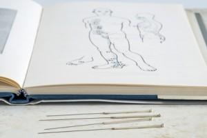 Akupunktur Buch und Nadeln